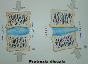 Ce recuperare trebuie facuta dupa operatia de hernie de disc